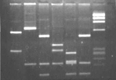 Sobre el rapidísimo test de ADN de Osama Bin-Laden
