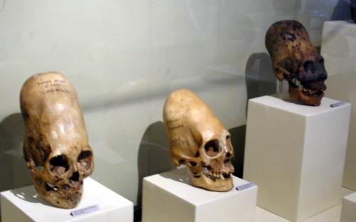 Más cráneos de Ica, Perú (Fuente)